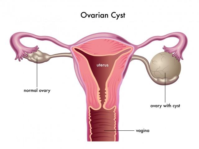 Chistul Ovarian